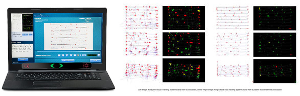 Eye Tracking Technology for Concussion Monitoring